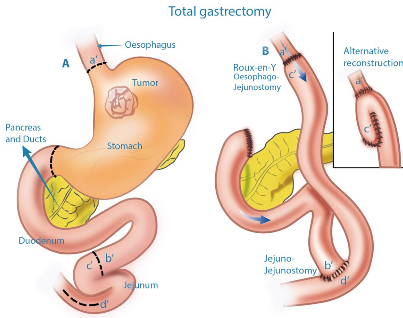 Total Gastrectomy
